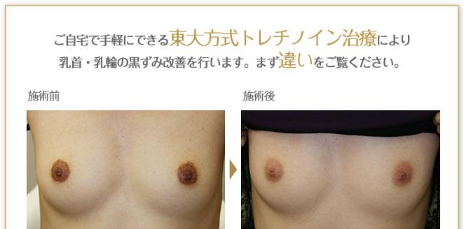 ご自宅で手軽にできる東大方式トレチノイン治療により乳首・乳輪の黒ずみ改善を行います。まず違いをご覧ください。